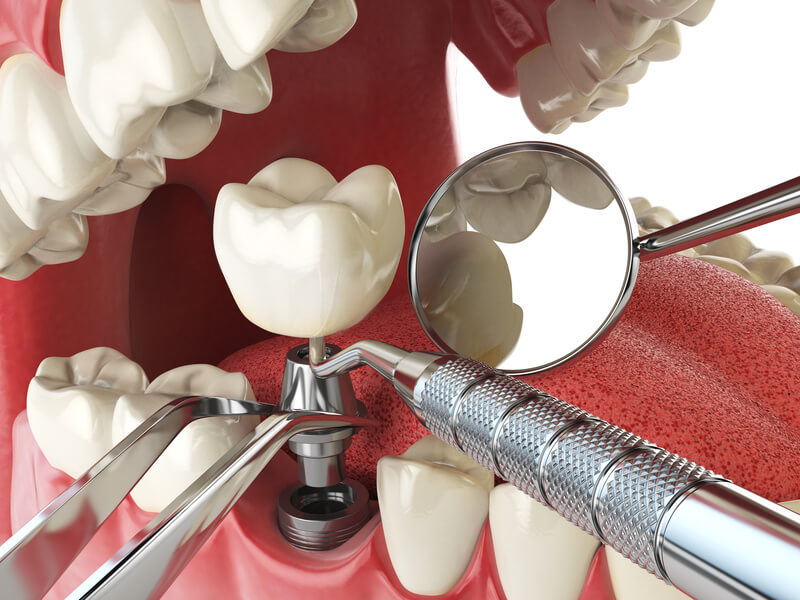devices for bone graft